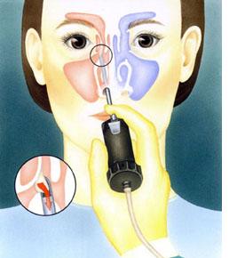 鼻茸の手術の実際